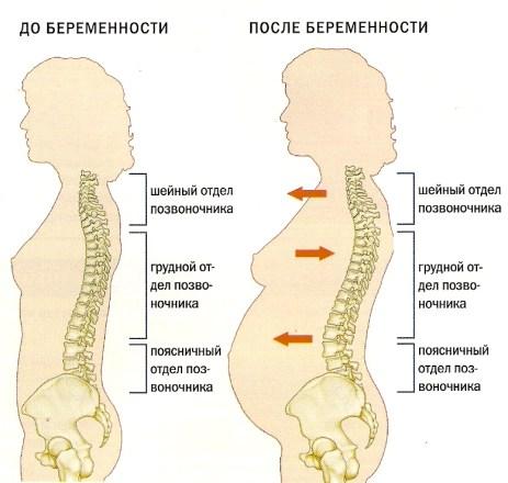 Болит спина во время беременности