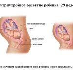 Срок беременности 29 недель