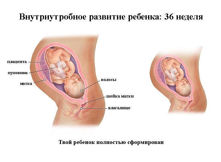 Срок беременности 36 недель